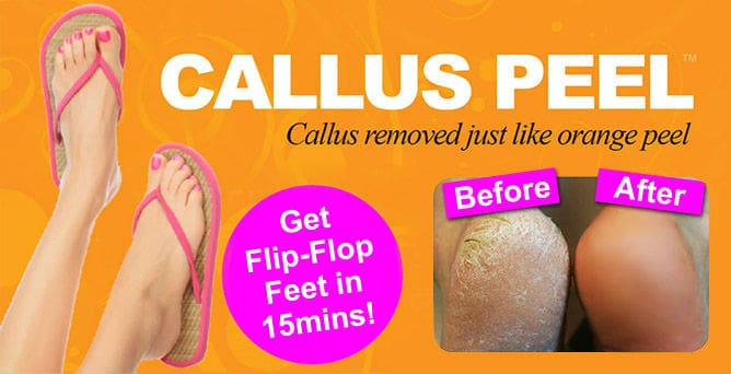Callus Peel Treatment